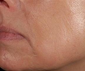Tekutý lifting obličeje před a po zákroku