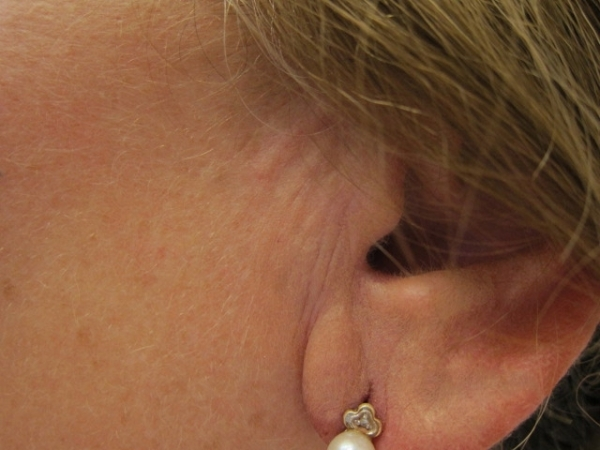 Ucho - výplň vrásek kyselinou hyaluronovou - před a po zákroku