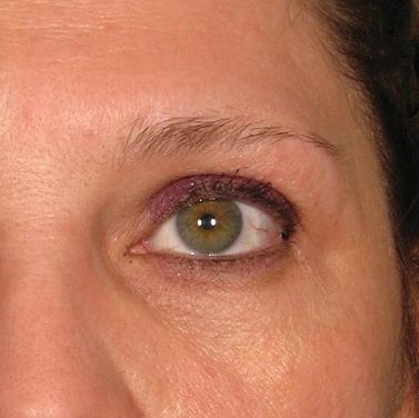 Ultherapie kolem očí před a po zákroku