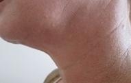 Ultherapie krku před a po zákroku