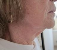 Ultherapie spodní část obličeje před a po zákroku