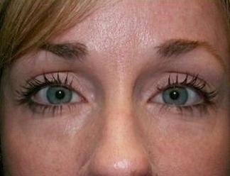 Výplň kruhů pod očima kyselinou hyaluronovou před a po zákroku