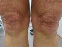 Zpevnění kolen mikrojehličkovou radiofrekvencí před a po zákroku