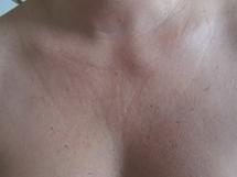 Zpevnění pokožky dekoltu mikrojehličkou radiofrekvencí před a po zákroku