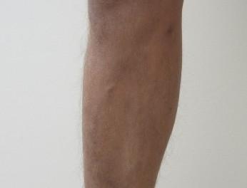 Laserová operace křečových žil po zákroku