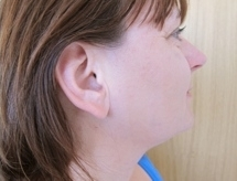 Léčba akné laserem po zákroku