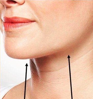 Lipolýza tuku Belkyra - po zákroku
