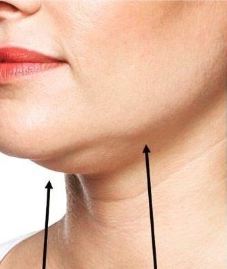 Lipolýza tuku Belkyra - před zákrokem