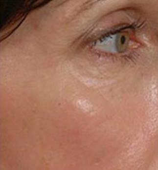 Odstranění pigmentací