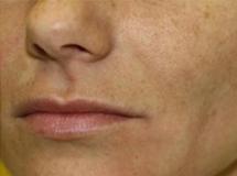 Odstranění kožních výrůstků CO2 laserem - po zákroku