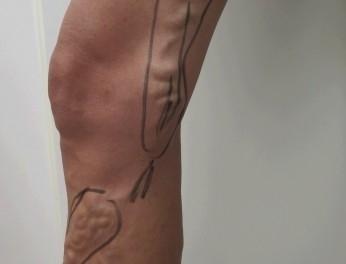 Laserová operace křečových žil před zákrokem