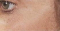 Laserové omlazení pleti kolem očí po zákroku