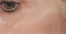 Laserové omlazení pleti kolem očí před zákrokem