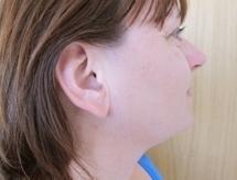 Léčba akné po zákroku