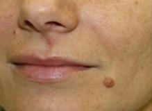 Odstranění kožních výrůstků CO2 laserem - před zákrokem