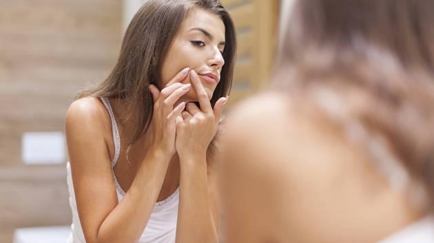 >Pozor u léčby akné. Pro ženy a muže platí jiná pravidla