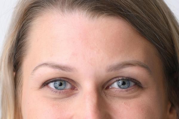 >Jak fungují kyseliny v kosmetice vysvětlí MUDr. Bergerová