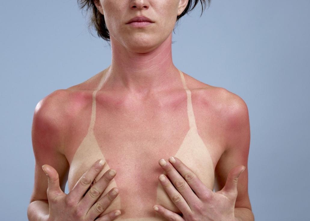 >OnaDnes - Co s kůží spálenou od sluníčka? Nepanikařte a chlaďte