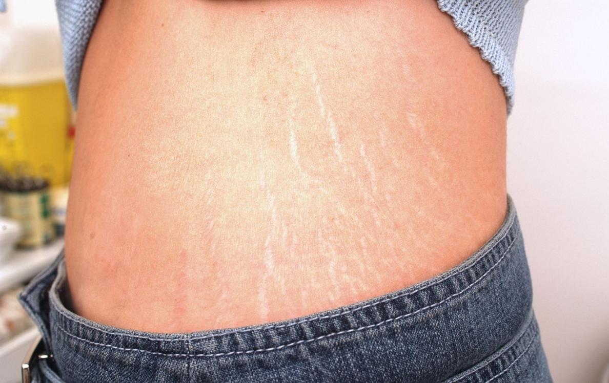 >OnaDnes - Na strie není účinná prevence. Kůže praská i mladým štíhlým slečnám